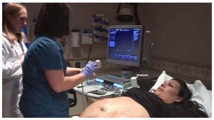 Հղիության ընթացքում 2 երեխաների մայրը նկատեց, որ իր որովայնը տարօրինակ կերպով է մեծանում ու շտապեց բժիշկի մոտ