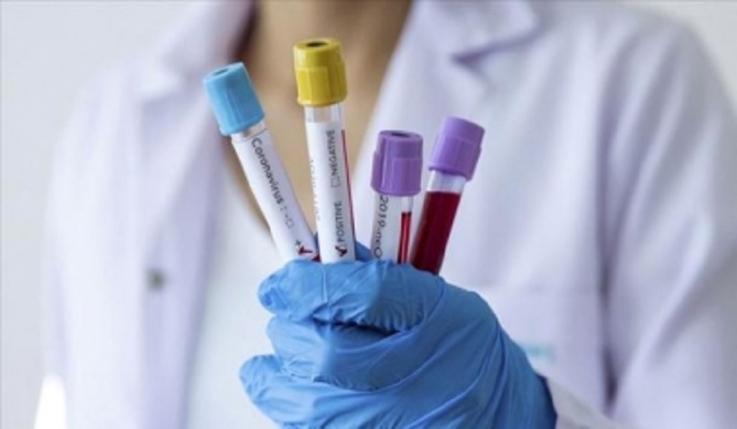 Կորոնավիրուսի ժամանակ հակաբիոտիկների ընդունումը կարող է վտանգավոր լինել. հետազոտություն
