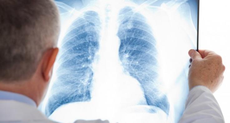 Ինչո՞վ է վտանգավոր կորոնավիրուսային թոքաբորբը