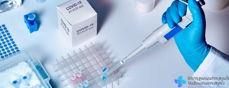 Հաստատվել է կորոնավիրուսային հիվանդության 1025 նոր դեպք, առողջացել է 626 մարդ