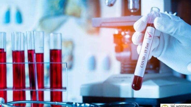 Արցախում հաստատվել է կորոնավիրուսային հիվանդության 6 դեպք